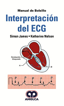 Interpretación del ECG. Manual de Bolsillo