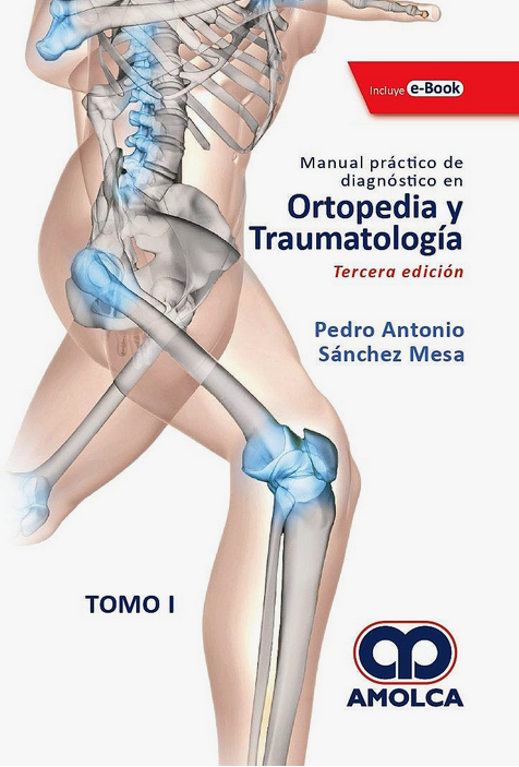 MANUAL PRACTICO DE DIAGNOSTICO EN ORTOPEDIA Y TRAUMATOLOGIA